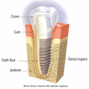 Cross Section of Completed Dental Implant