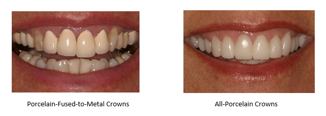 before and after all porcelain crowns